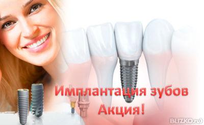 Имплантация зубов в новосибирске цены акции